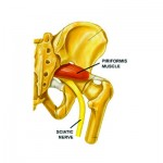 Piriformis Syndrome – A Real Pain in the Butt
